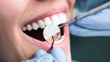 Amalgám v ústech zdraví nepoškodí